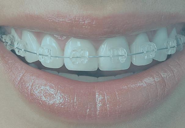 tandställning bakom tänderna