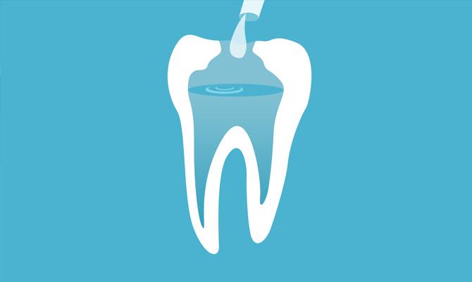 ont i tanden efter rotfyllning