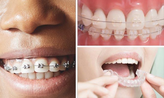 osynlig tandställning pris