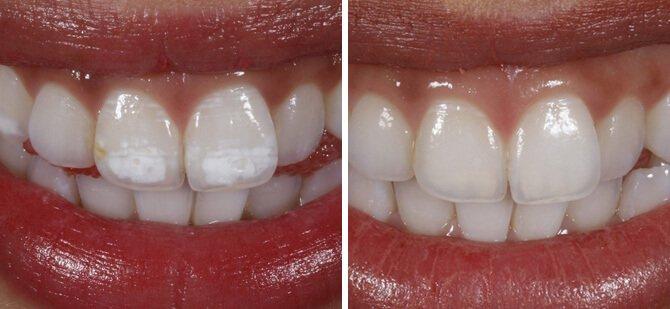 bleka tänderna kostnad