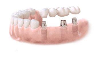 implantat tänder kostnad